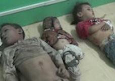 کشتار کودکان در یمن